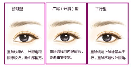 天津伊美尔卫星眼部逆袭三部曲,看你适合什么眼型