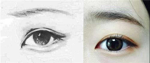 天津伊美尔王牌项目芭比美眼双眼皮,放大双眼魅力