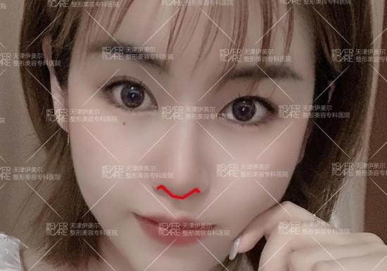 天津伊美尔王牌新品打造高级感美鼻