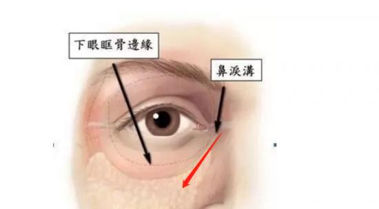 天津伊美尔新品发布季,嗨体熊猫针眼部年轻化黑科技